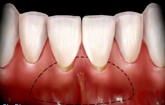 Gingival Surgery